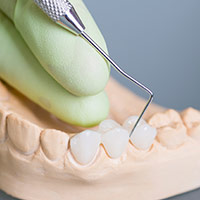 Dental model of smile with fixed bridge restoration