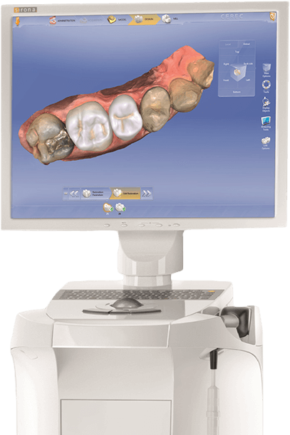 CEREC system displaying restoration animation