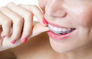 Your dentist in Arlington discusses the advantages of Invisalign over traditional braces.