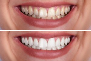 before-and-after teeth whitening