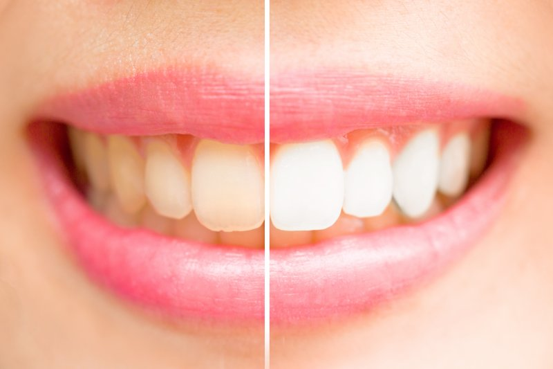 A before and after image of a person's smile after teeth whitening in Arlington